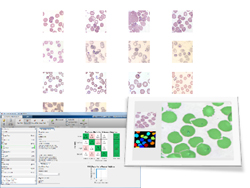 Data Analytics and Medical Image Processing with MATLAB